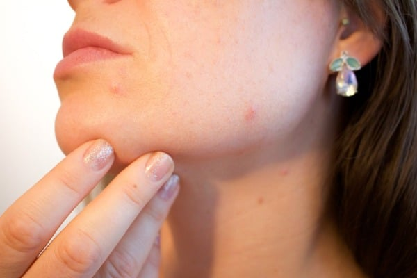 Best Acne Products and Home Remedies To Get Rid of Acne Fast