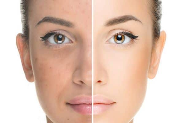 Effective Home Remedies For Skin Rejuvenation